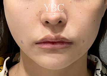 YBC横浜美容外科 大宮院の症例写真[アフター]