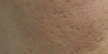 ニドークリニック 名古屋のニキビ治療・ニキビ跡の治療の症例写真[ビフォー]