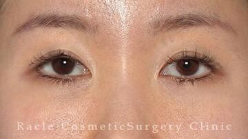 新宿ラクル美容外科クリニックの目・二重整形の症例写真[ビフォー]