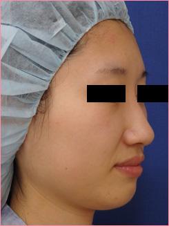 ■隆鼻術+鼻尖拳上形成術[ビフォー]