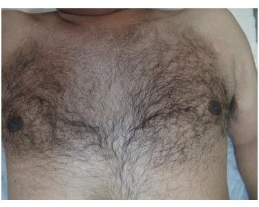 医療レーザーで、毛量を調整し清潔感UP!の症例写真[ビフォー]