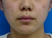 東京中央美容外科・美容皮膚科の痩身、メディカルダイエットの症例写真[ビフォー]