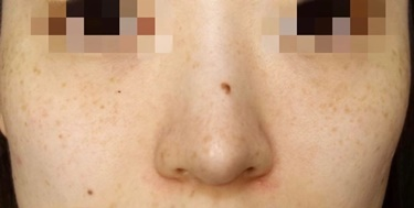 ピコスポット+ピコトーニングのシミ治療の症例写真[ビフォー]