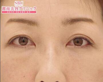 湘南美容クリニック 東京蒲田院の目元の整形、くま治療の症例写真[アフター]