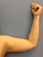 湘南美容クリニック福岡院の脂肪吸引の症例写真[ビフォー]
