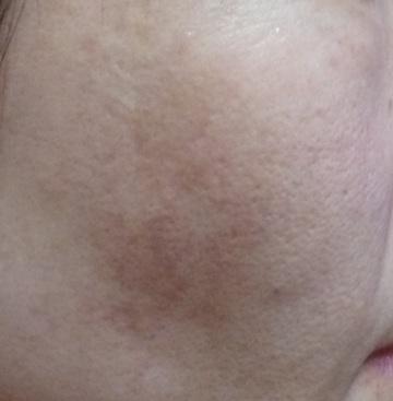 広島プルミエクリニックのシミ治療(シミ取り)・肝斑・毛穴治療の症例写真[ビフォー]