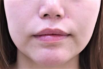 の輪郭・顎の整形の症例写真[アフター]