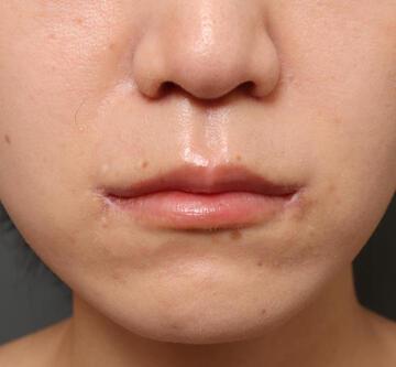 オザキクリニック LUXE新宿の口元・唇の整形の症例写真[アフター]