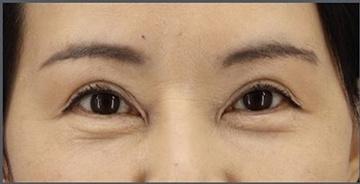 銀座長瀬クリニックの目元の整形、くま治療の症例写真[アフター]