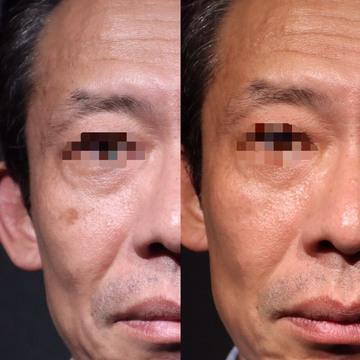 SHERIE CLINIC (シェリークリニック)のシミ治療(シミ取り)・肝斑・毛穴治療の症例写真
