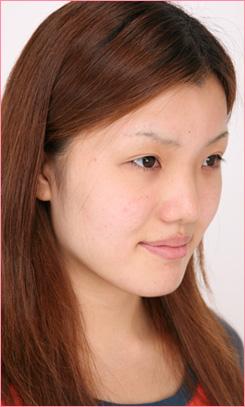 城本クリニックの鼻の整形の症例写真[ビフォー]