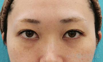 エースクリニック 名古屋院の目元整形・クマ治療の症例写真[ビフォー]