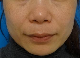 TCB東京中央美容外科のその他の美容整形の症例写真[ビフォー]