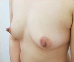 の豊胸手術(胸の整形)の症例写真[ビフォー]