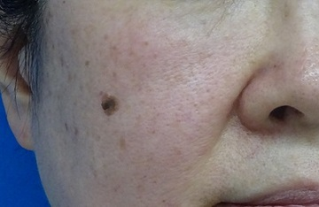 東京中央美容外科・美容皮膚科のホクロ除去・あざ治療・イボ治療の症例写真[ビフォー]