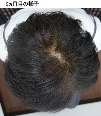 静岡美容外科橋本クリニックの薄毛治療の症例写真[アフター]