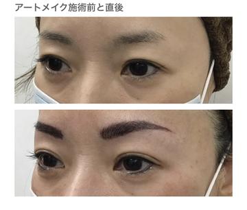 浦和第一美容クリニックのアートメイクの症例写真