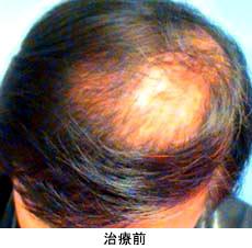 ニドークリニック名古屋の薄毛治療・AGA・発毛の症例写真[ビフォー]