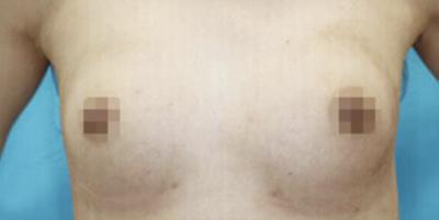 【豊胸】高濃度脂肪注入術の症例写真[アフター]