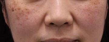 ヴィンテージビューティークリニック横浜のシミ取り・肝斑・毛穴治療の症例写真[ビフォー]