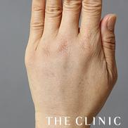 THE CLINIC(ザ・クリニック)の顔のしわ・たるみの整形(リフトアップ手術)の症例写真[アフター]