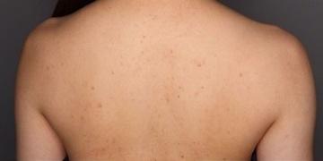 SELECT CLINIC(セレクトクリニック)のニキビ・ニキビ跡の治療の症例写真[ビフォー]
