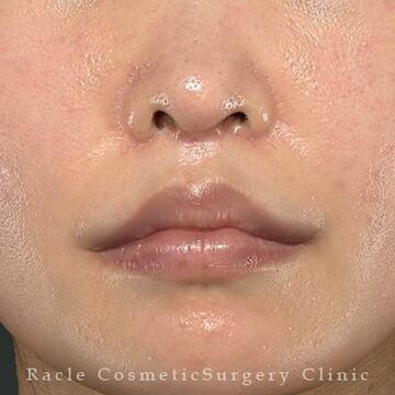 新宿ラクル美容外科クリニックの口元・唇の整形の症例写真[アフター]