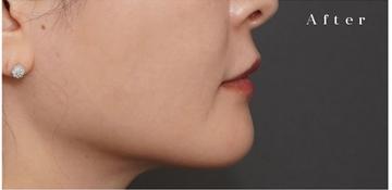 アーククリニックの口元・唇の整形の症例写真[アフター]