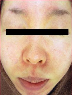 ★赤ら顔+鼻周りの毛細血管拡張症★の症例写真[ビフォー]
