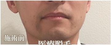 西宮SHUHEI美容クリニックの医療レーザー脱毛の症例写真[ビフォー]