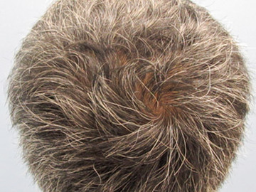 あやべクリニックの薄毛治療の症例写真[アフター]