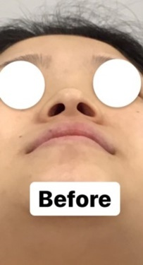 東郷美容形成外科福岡の鼻の整形の症例写真[ビフォー]