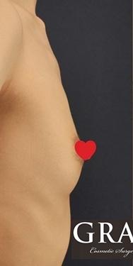 GRACIA clinic(グラシアクリニック)の豊胸手術(胸の整形)の症例写真[ビフォー]
