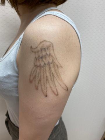 札幌クララ美容皮膚科の症例写真[アフター]