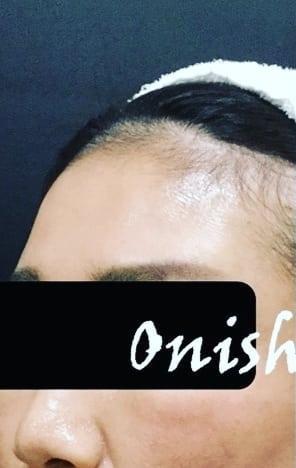 大西皮フ科形成外科医院の顔の整形(輪郭・顎の整形)の症例写真[ビフォー]