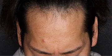 SELECT CLINIC(セレクトクリニック)の薄毛治療の症例写真[ビフォー]
