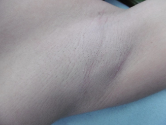 鹿児島三井中央クリニックのわきが手術・多汗症治療の症例写真[ビフォー]
