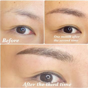 レア形成外科・美容皮膚科のアートメイクの症例写真