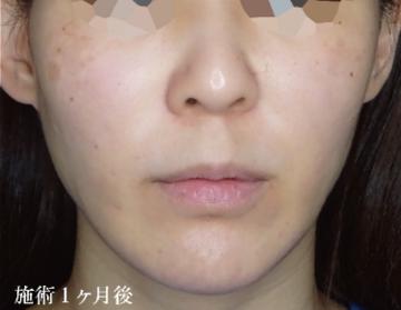 TCB東京中央美容外科 梅田大阪駅前院の顔のしわ・たるみの整形の症例写真[アフター]