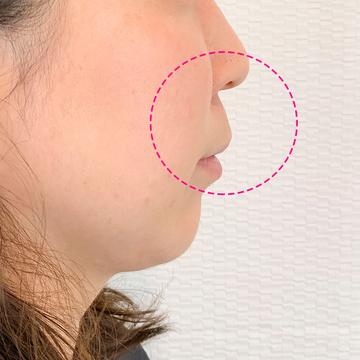 A CLINIC(エークリニック)の鼻の整形の症例写真[ビフォー]