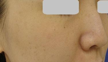 そばかす(レーザートーニング両頬)の治療の症例写真[アフター]