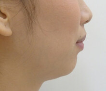 スキンコスメクリニックグループの顔の整形(輪郭・顎の整形)の症例写真[ビフォー]