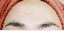 城本クリニックのニキビ・ニキビ跡の治療の症例写真[アフター]