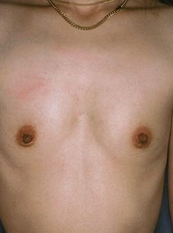 白山クリニックの豊胸・胸の整形の症例写真[ビフォー]