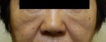さやか美容クリニック・町田の顔のしわ・たるみの整形(リフトアップ手術)の症例写真[ビフォー]