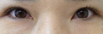ドーズ美容外科の目・二重の整形の症例写真[アフター]