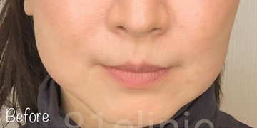 81clinicの顔のしわ・たるみの整形(リフトアップ手術)の症例写真[ビフォー]