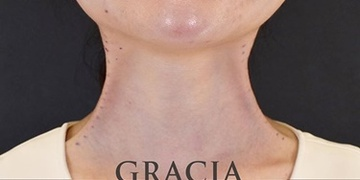 GRACIA clinic(グラシアクリニック)の顔の整形(輪郭・顎の整形)の症例写真[ビフォー]