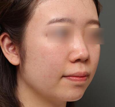 肌管理毛穴スリークスキン4回モニターの症例写真[アフター]