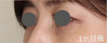 広島プルミエクリニックの目元整形・クマ治療の症例写真[アフター]